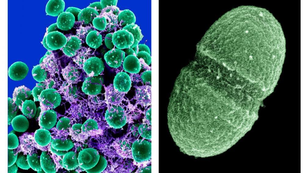 MICROBIOMA HUMANO. Un grupo de científicos pudo identificar  los billones de bacterias y virus que pueblan las diferentes partes del cuerpo (AP).