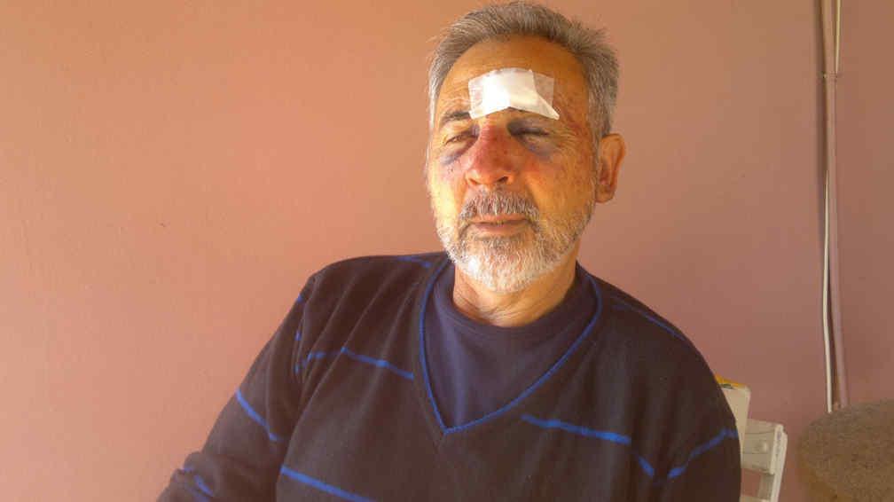 RUBÉN GONZÁLEZ. Fue brutalmente golpeado por los asaltantes (La Voz/Ramiro Pereyra).