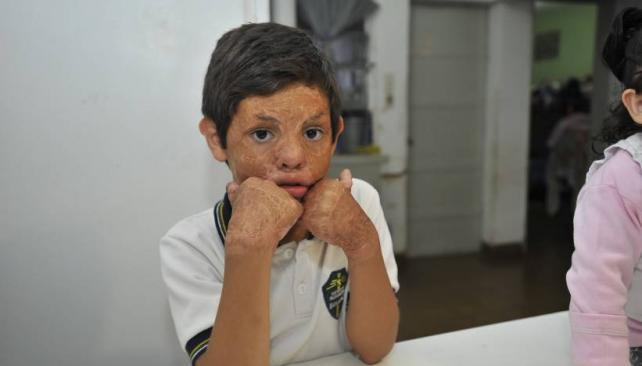 A LA ESPERA. Tomás espera que le practiquen una nueva cirugía en sus manos y rostro (LaVoz/Sergio Cejas).