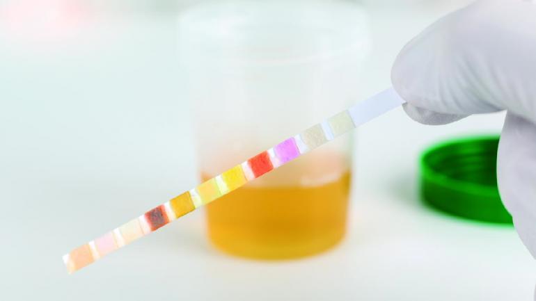 Para diagnosticar el cólico renal, los estudios más frecuentes que se realizan son: análisis de orina, ecografía, radiografía simple y tomografía computada. (Sanatorio Allende)