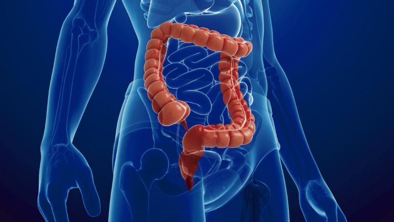 El cáncer colorrectal tiene lugar cuando existen células malignas en el intestino grueso. (Sanatorio Allende)