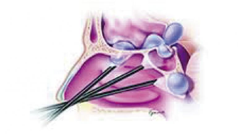 Este procedimiento quirúrgico es una herramienta clave para el tratamiento de patologías oncológicas de nariz y senos paranasales y para correcciones en el tabique nasal. (Sanatorio Allende)