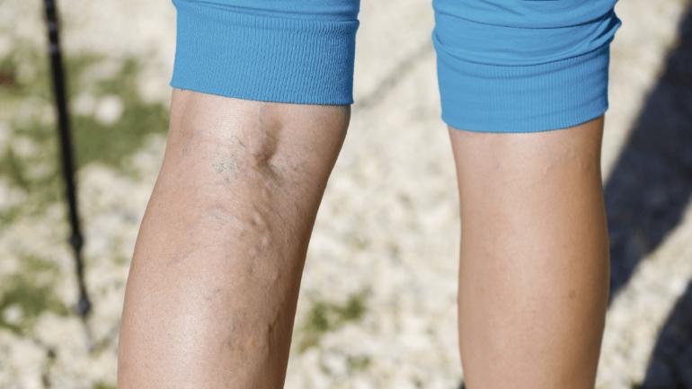 La trombosis venosa en extremidades se caracteriza por el dolor en la pantorrilla, cambio de color de la pierna y calambres. (Sanatorio Allende)
