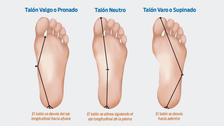Debemos tener en cuenta el tipo de pie, normal, cavo o plano, al momento de elegir el calzado deportivo adecuado. (Sanatorio Allende)