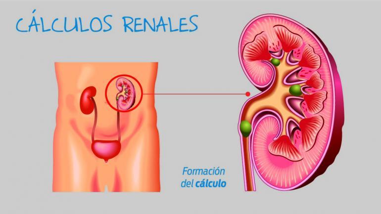 Cálculos renales. formación del cálculo. (Sanatorio Allende)