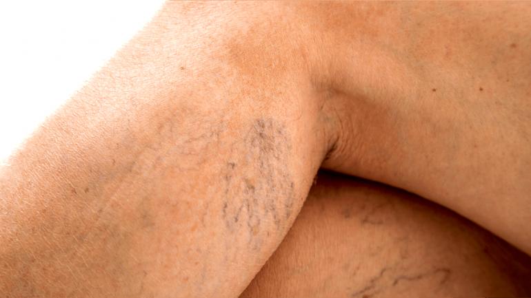 Las várices son venas que se dilatan a causa de alteraciones en nuestro aparato circulatorio. (Sanatorio Allende)