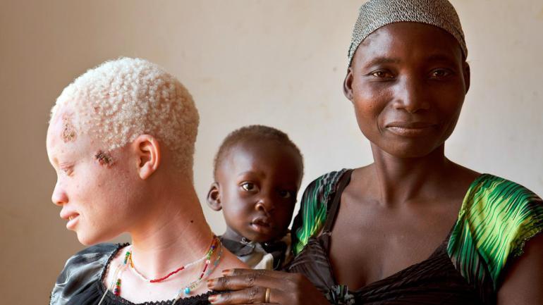 Angel Salvatory, que tiene cáncer de piel, con su medio hermano Ezekiel, y su madre Bestida, a quien no había visto en los cuatro años que ha vivido fuera de casa, después de que su propio padre lideró a un grupo de hombres para atacarla, vista en el Kabanga Protectorate Center, Tanzania. (AP Photo / Jacquelyn Martin)