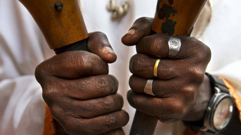 """Con un anillo que dice """"amor"""", """"Doctor"""" Richard Nziguye, de 75 años, se aferra a los objetos usados en sus ceremonias para """"silenciar demonios"""", en Kitahana Village, Tanzania. Nziguye dice que es bastante famoso . A pesar de que se llama a sí mismo un sanador tradicional, dice que puede hacer pociones mágicas que traerán riquezas al cliente. (AP Photo / Jacquelyn Martin)"""