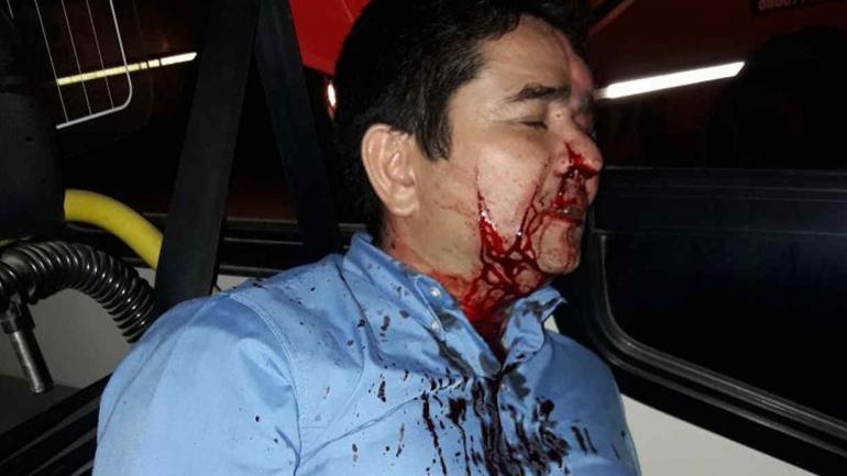 Así quedó el chofer agredido (Gentileza Marcelo Marín).