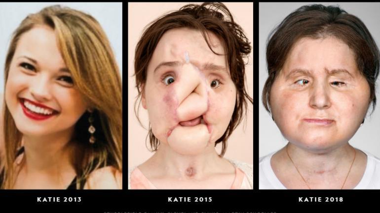 El antes y después de Katie (National Geographic).