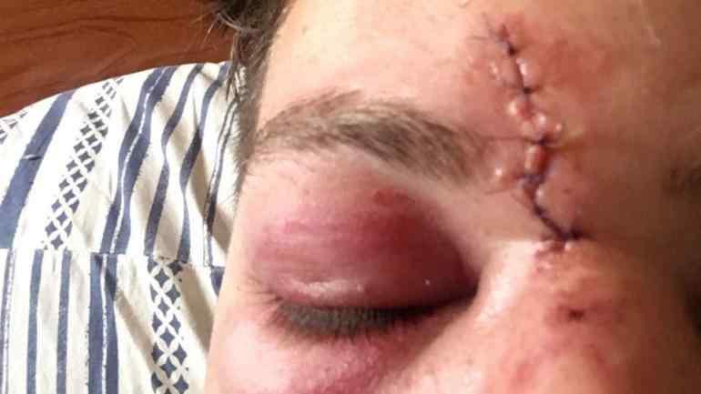 Lucas fue herido en la cara con un piedrazo.