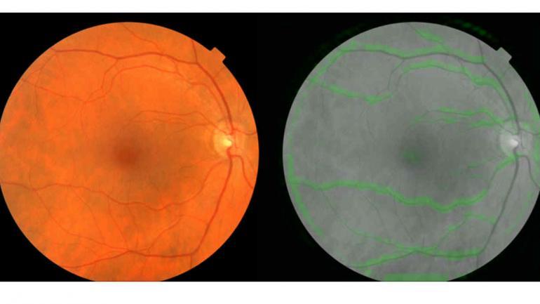Dos imágenes del fondo de ojo. El de la izquierda es una imagen normal; el de la derecha muestra cómo el algoritmo de Google selecciona los vasos sanguíneos (en verde) para predecir la presión arterial.